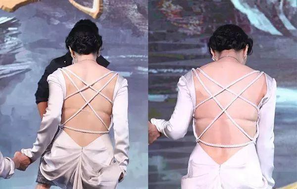 背部脂肪堆积